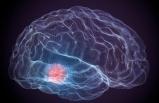 Beyin Kanserleri Artıyor