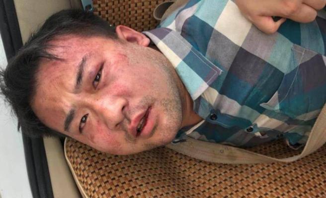 Çin'de okul önünde bıçaklı saldırı: 2 çocuk öldü